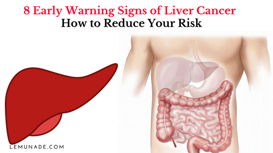 8 Early Warning Signs of Liver Cancer